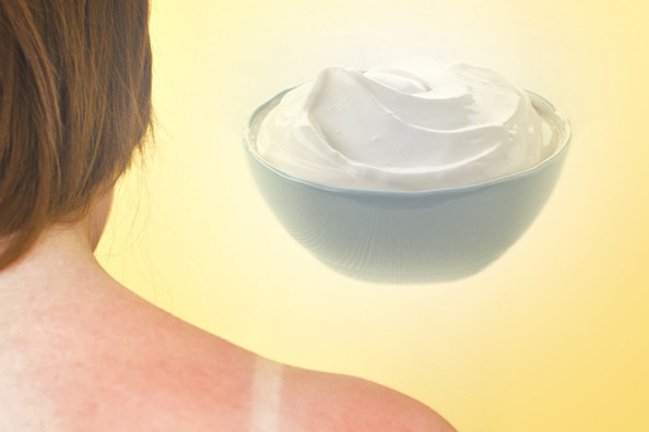 Tuesday Tip: Soothe a Sunburn with this Edible Ingredient